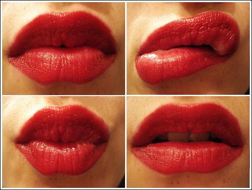lip_plumpers.jpg