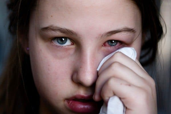 Pink Eye: It's Not Pretty But There's No Reason to Panic