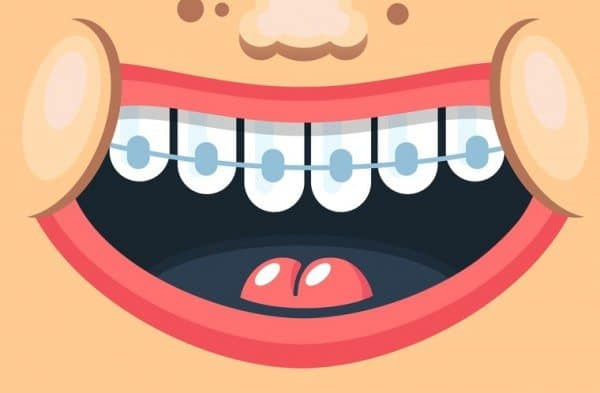 The Straight Truth About Orthodontia for Kids