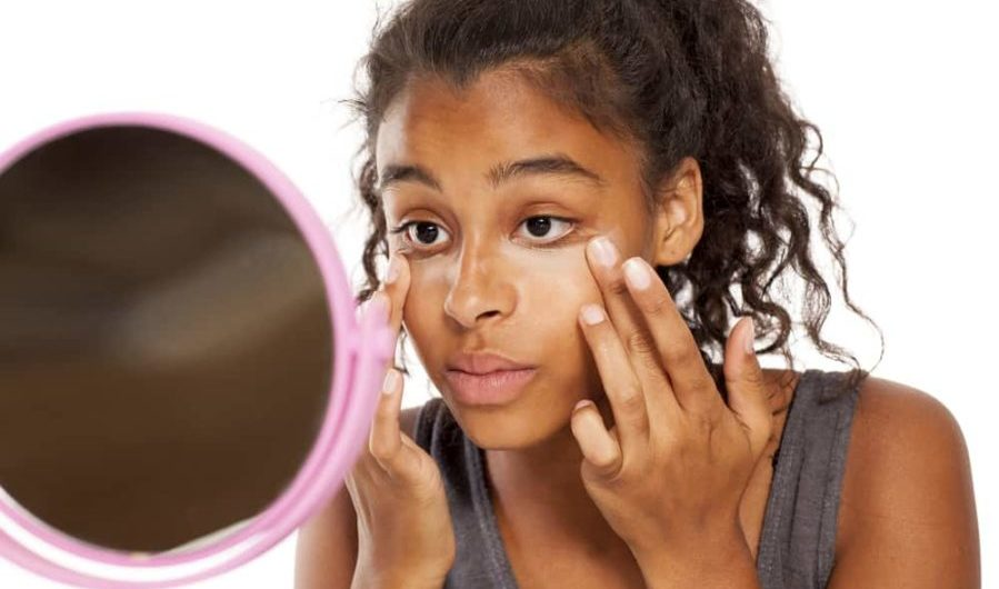 teen girl applies a concealer under the eyes with her fingers